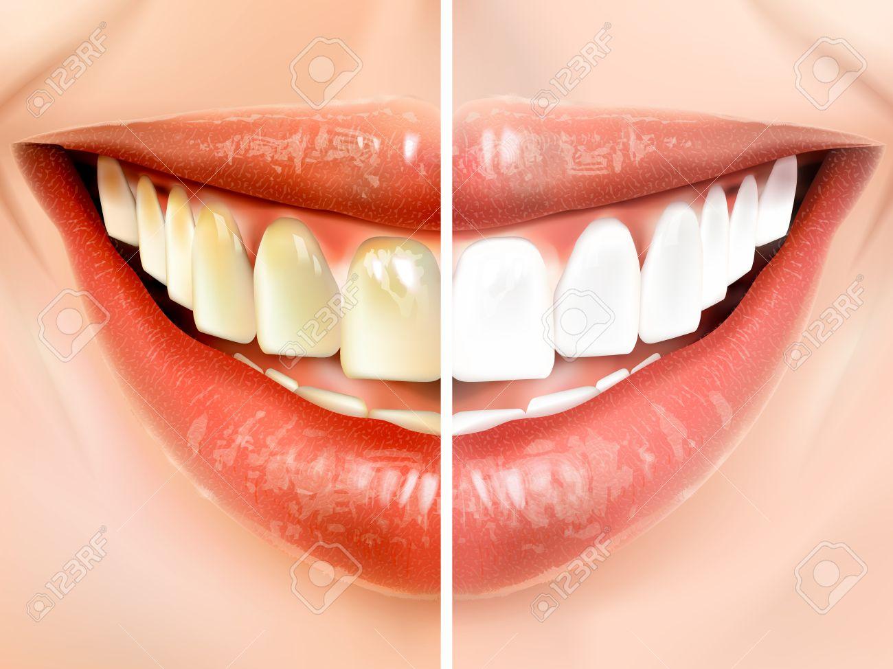 les dents sales