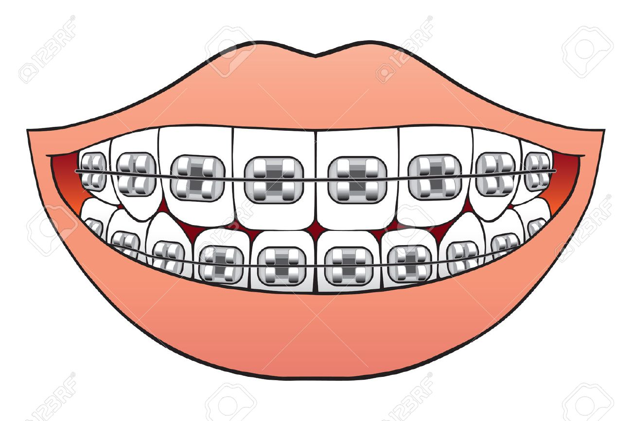 Teeth with braces pictured inside mouth - 34153579