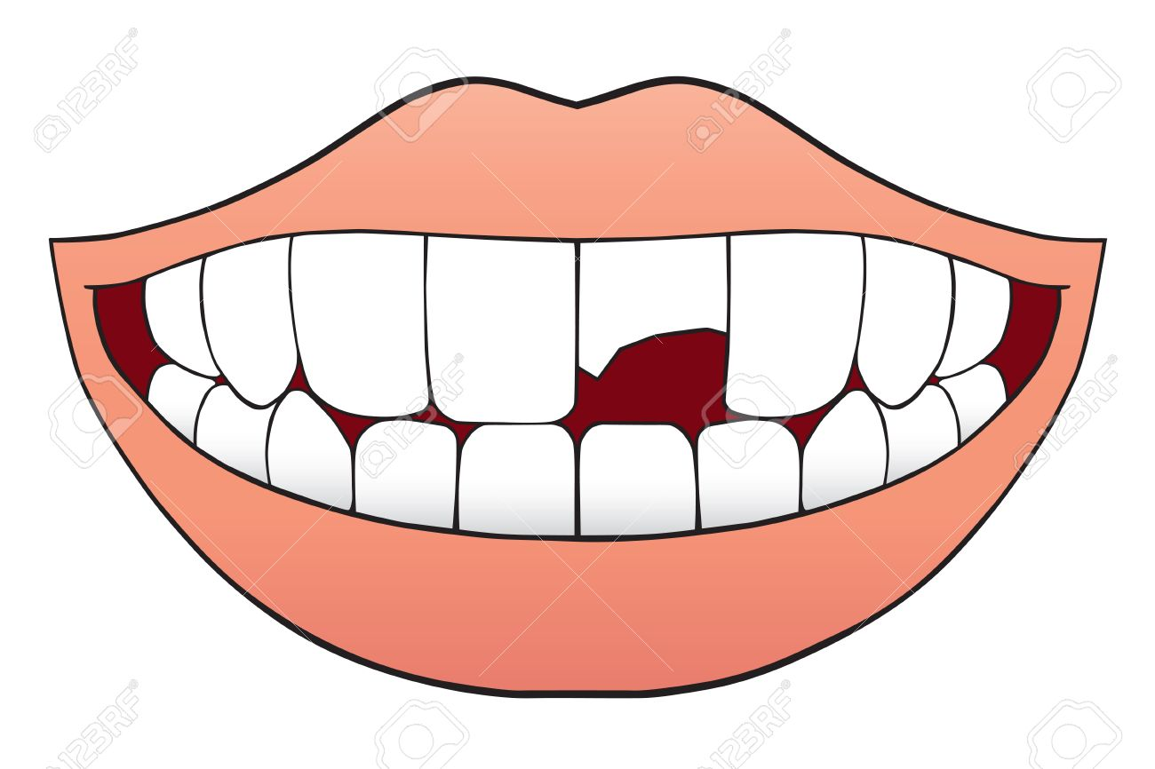 Smiling mouth with one tooth that is broken half off - 64998313