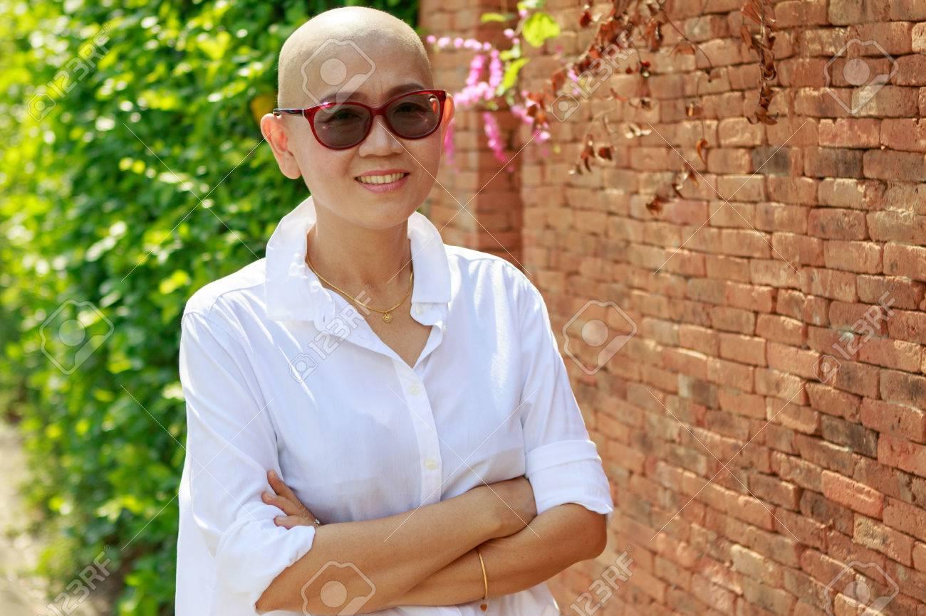Porträt Selbstvertrauen Asiatische Frau Mit Glatze Nach Krebs