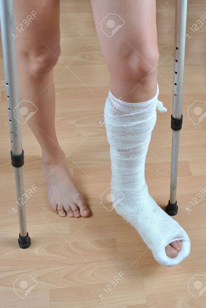 Resultado de imagen para pierna quebrada con yeso