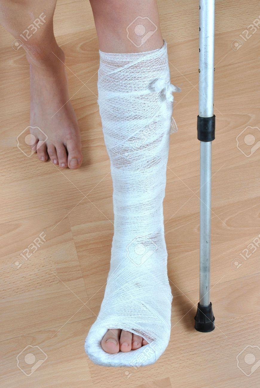belle qualité Clairance de 60% vente professionnelle Patient avec des béquilles avec la fracture à la jambe dans le plâtre