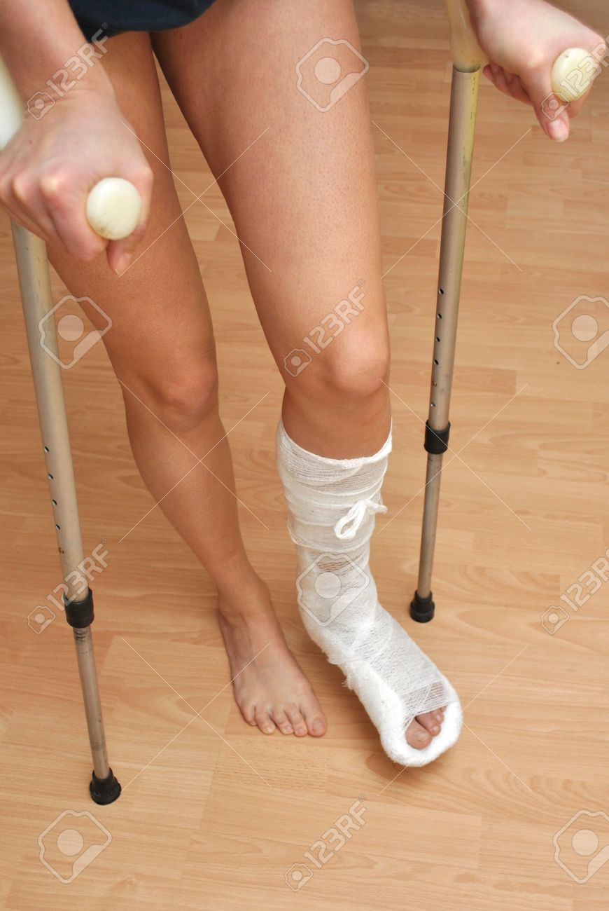 Patient with broken leg in cast and bandage Stock Photo - 9407516