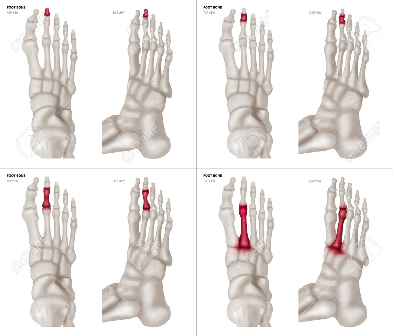 X Ray Collection Of Long Toe Foot Bone With Red Highlights On
