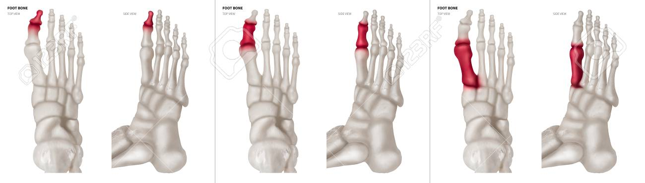 X-ray Collection Of Big Toe Foot Bone With Red Highlights On.. Stock ...