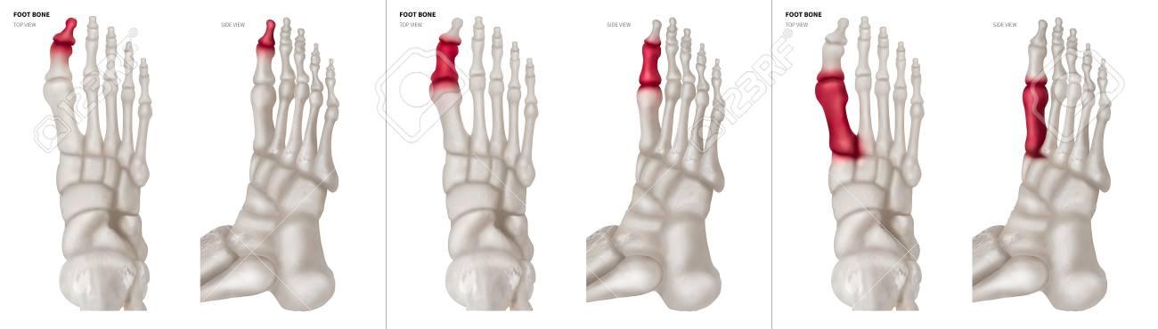 Großartig Anatomy Top Of Foot Zeitgenössisch - Menschliche Anatomie ...