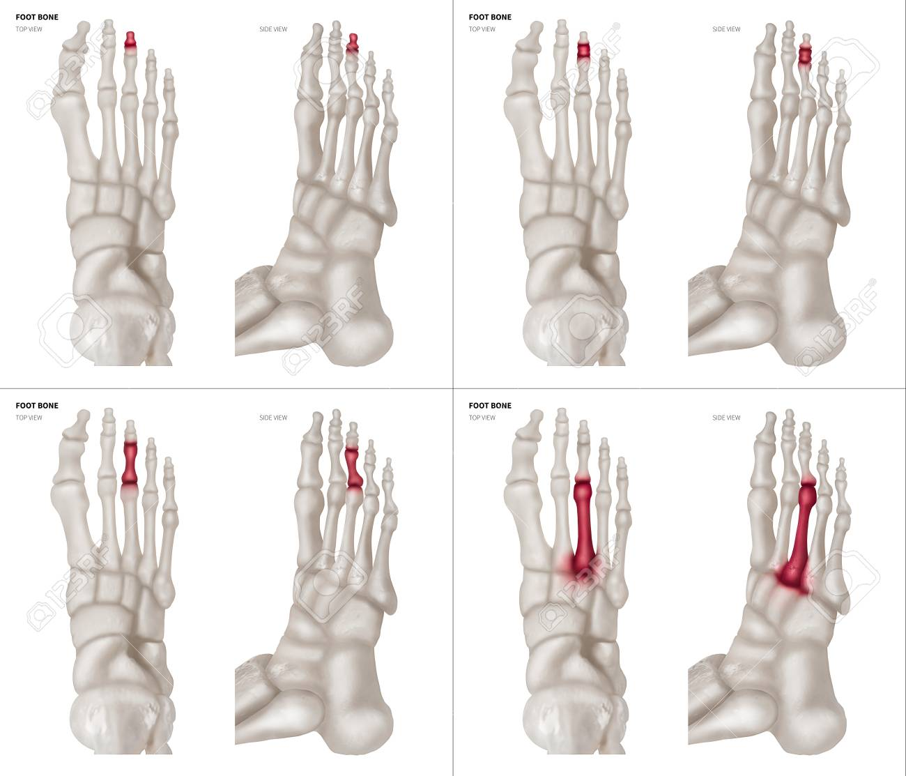 X-ray Collection Of Middle Toe Foot Bone With Red Highlights.. Stock ...