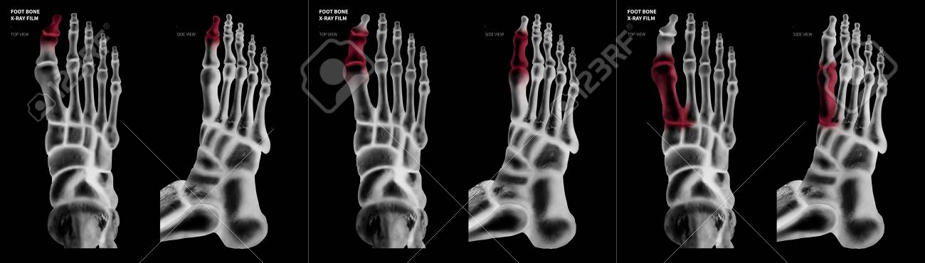 X-ray Film Collection Of Big Toe Foot Bone With Red Highlights ...