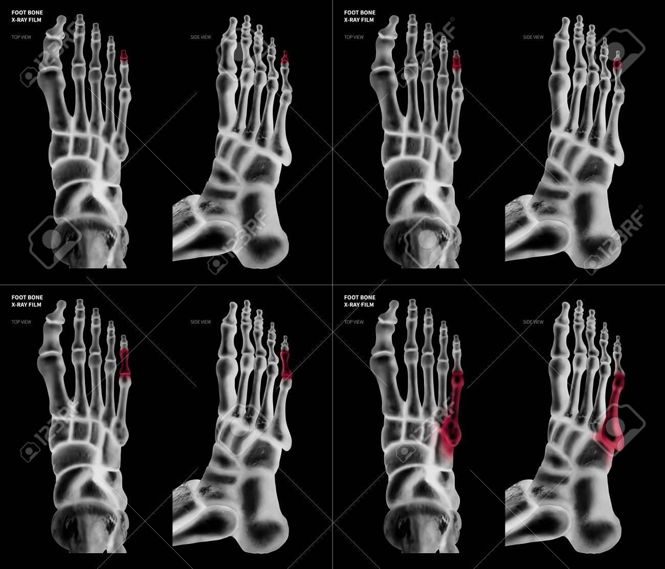 X-ray Film Collection Of Little Toe Foot Bone With Red Highlights ...