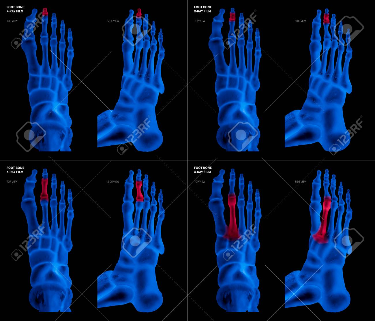 X-ray Blue Film Collection Of Long Toe Foot Bone With Red Highlights ...