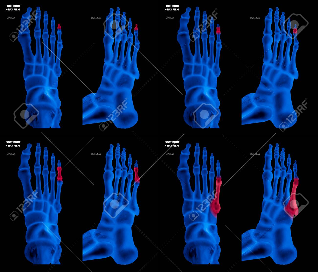 X-ray Blue Film Collection Of Little Toe Foot Bone With Red ...