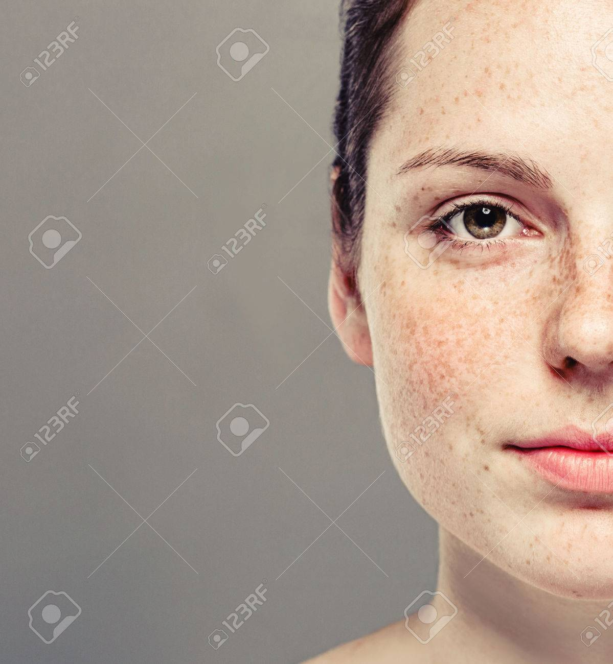 Young beautiful freckles woman half face portrait with healthy skin. - 62775417
