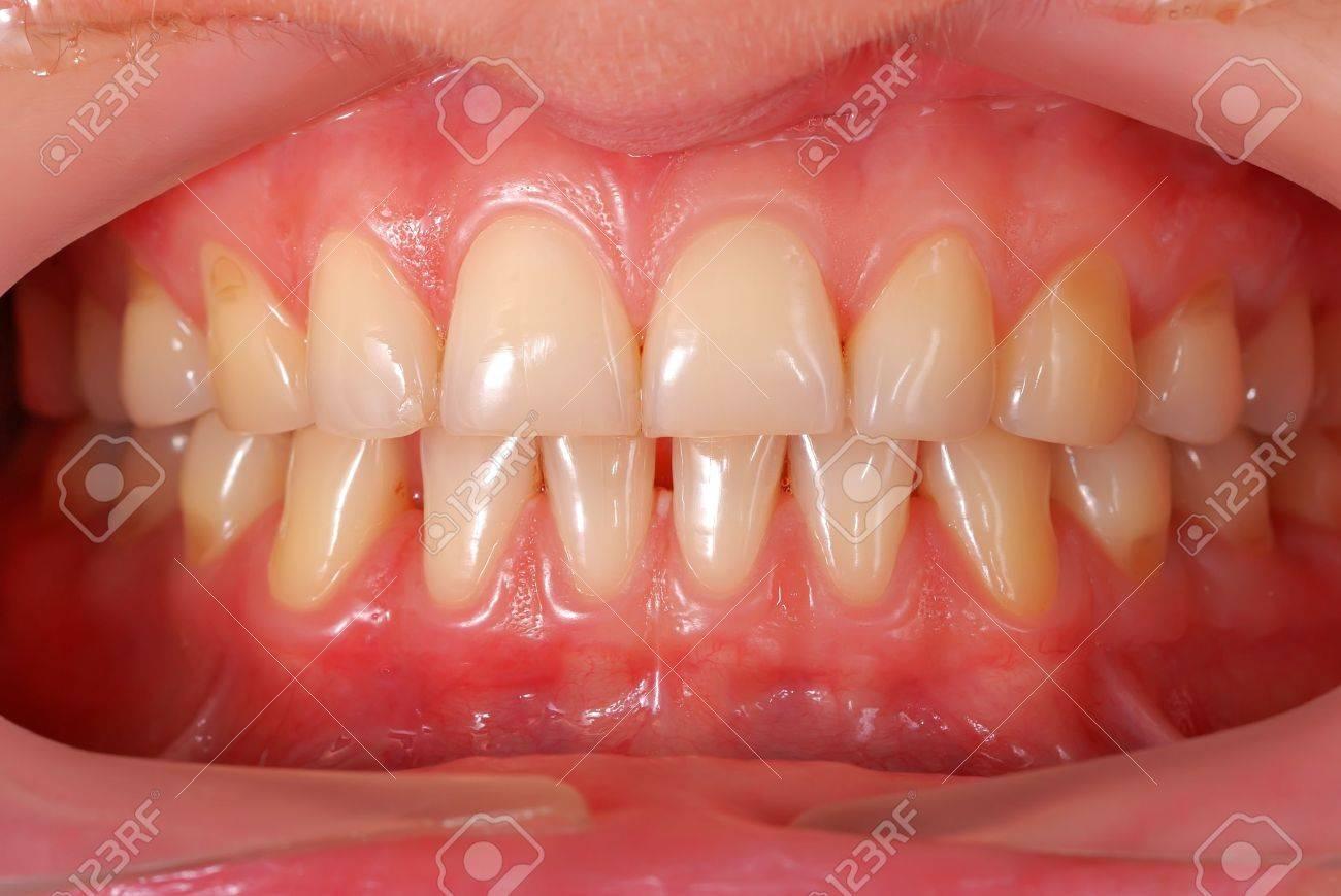 Hochauflösende Menschliche Zähne Nahaufnahme Lizenzfreie Fotos ...