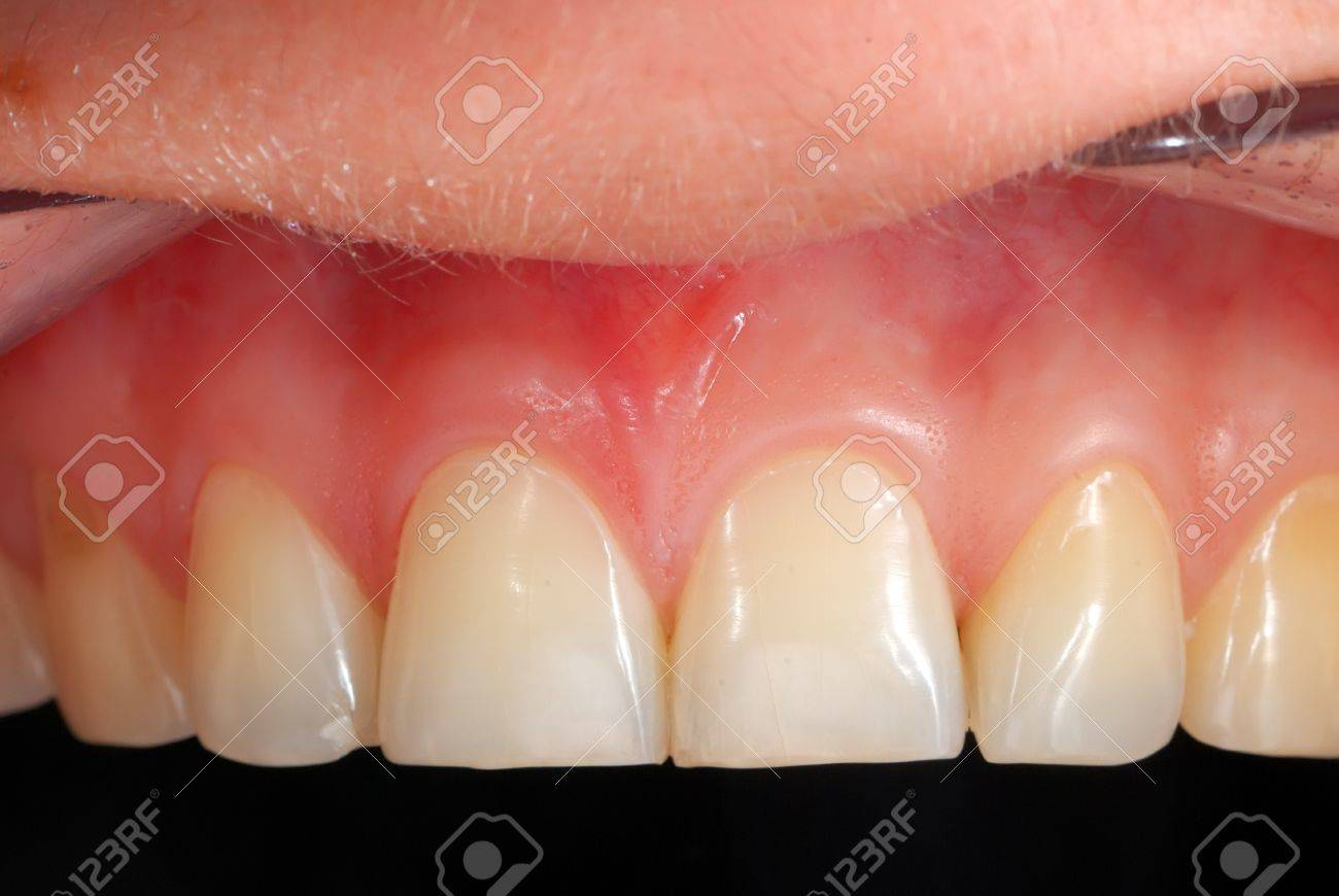 High Resolution Human Teeth Closeup Stock Photo Picture And