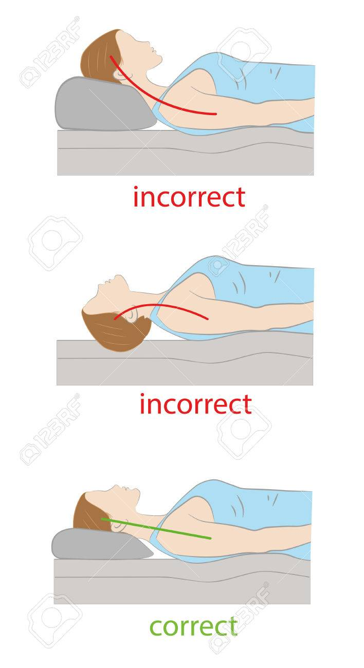 Correct And Incorrect Position Of The Head On The Pillow Medical Royalty Free Cliparts Vectors And Stock Illustration Image 83436880