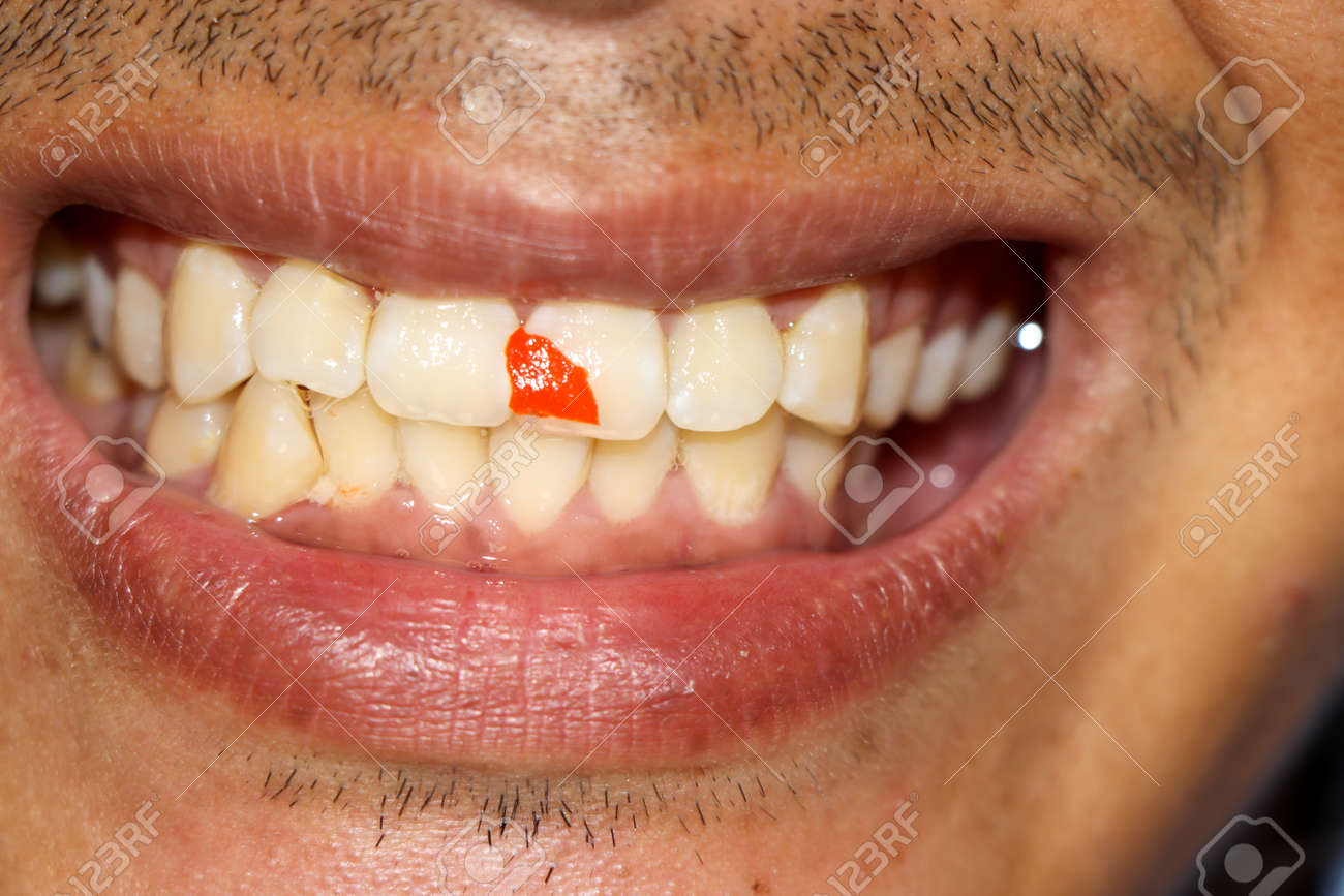 Red chili fragments stuck in teeth - 157183385
