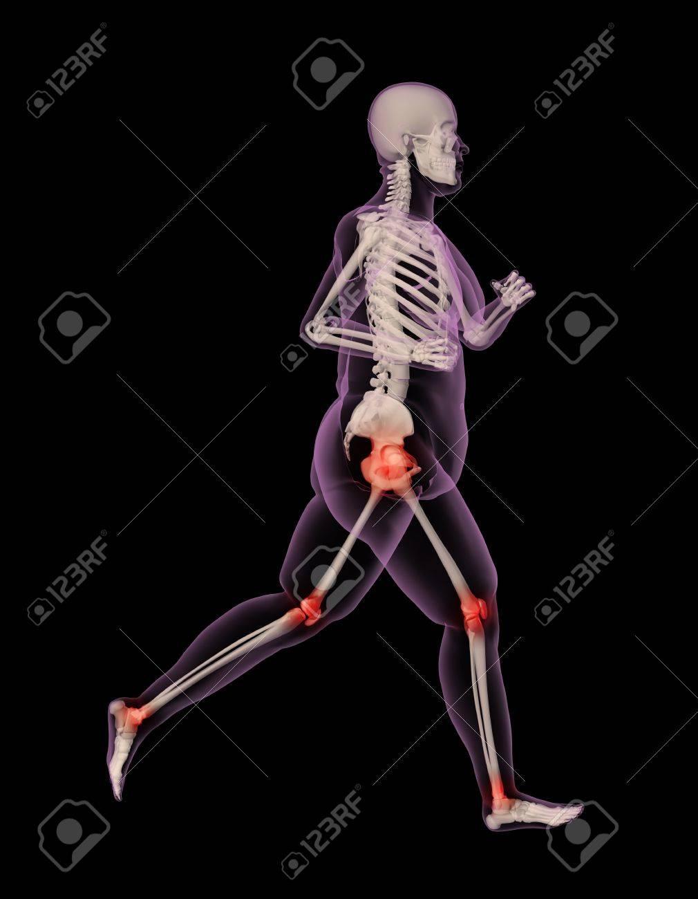 3d Render Of An Overweight Female Skeleton Running Showing Pressure