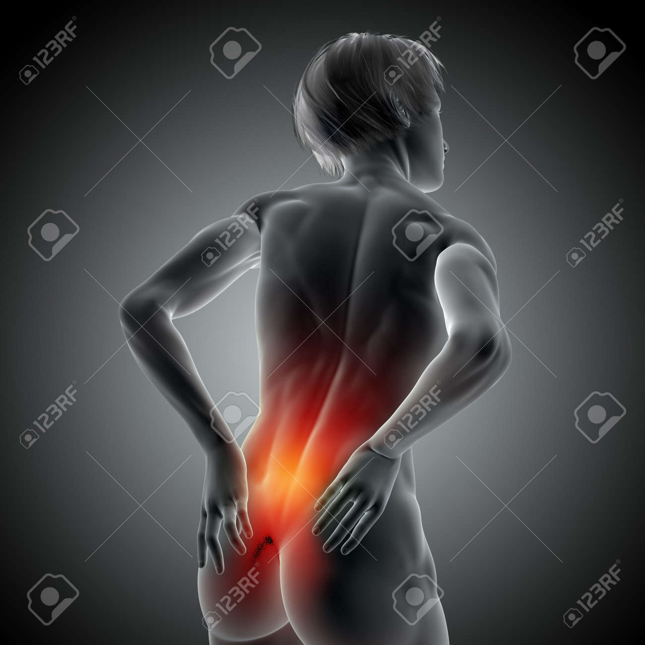 3D render of a medical image with female holding her back in pain - 145691383
