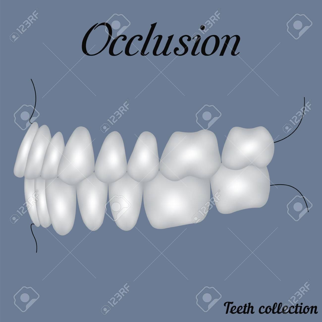 Okklusion Seitenansicht - Beißen, Schließung Von Zähnen ...