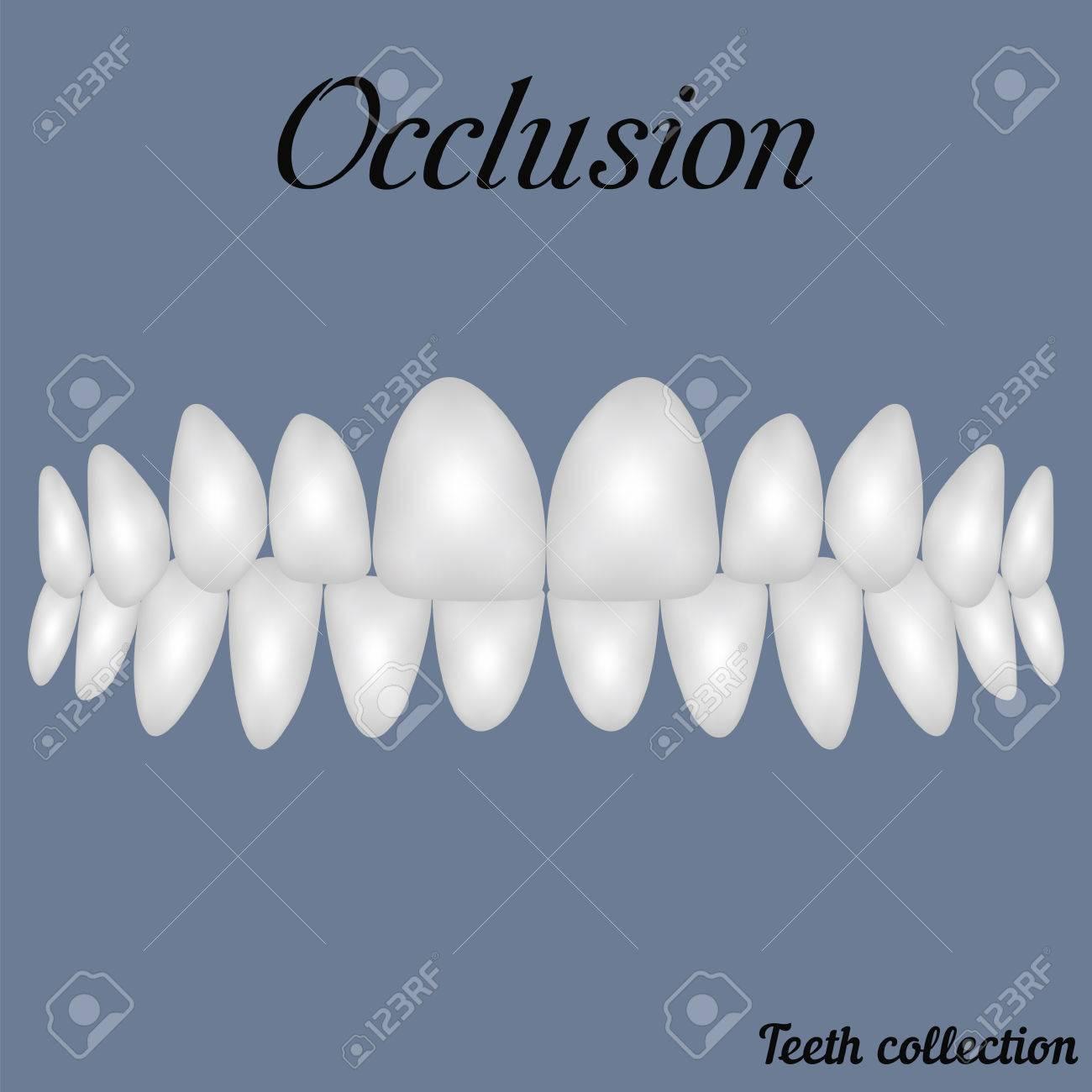 Okklusion Zusammengebissenen Zähnen - Biss, Schließung Der Zähne ...