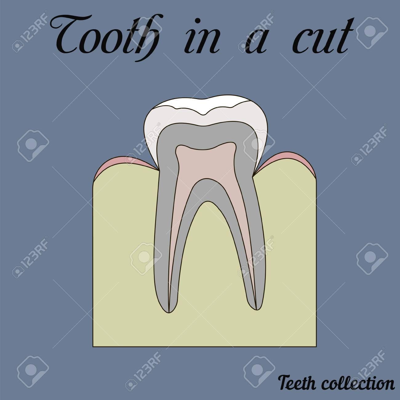 Tooth In A Cut - Molar - Tooth Anatomy - Dentine, Enamel, Pulp ...