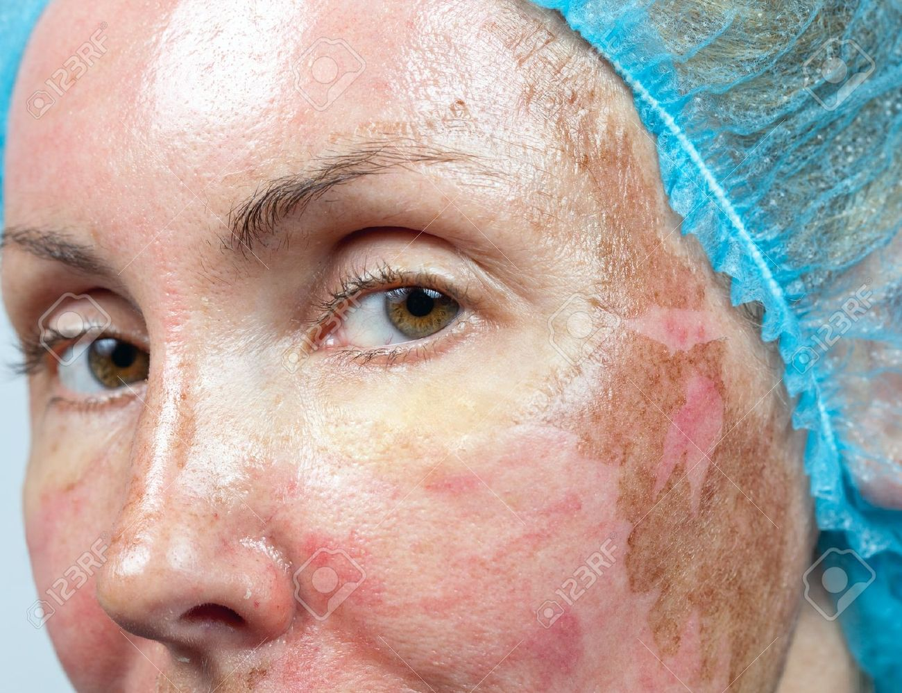 cosmetology new skin after a chemical peeling a redness because