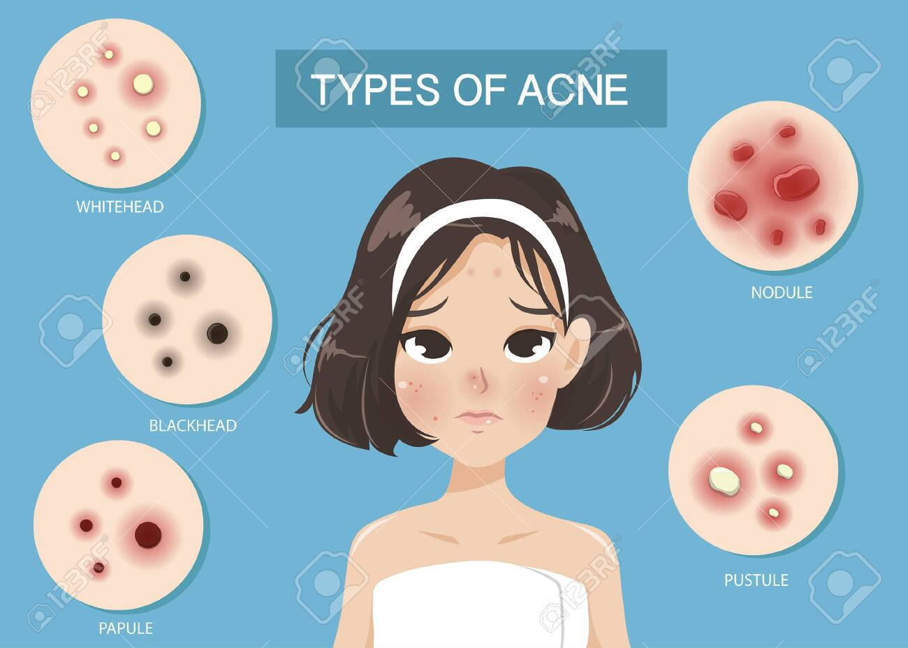 Types of acne occur on the face of the girl shot hair. - 123528972