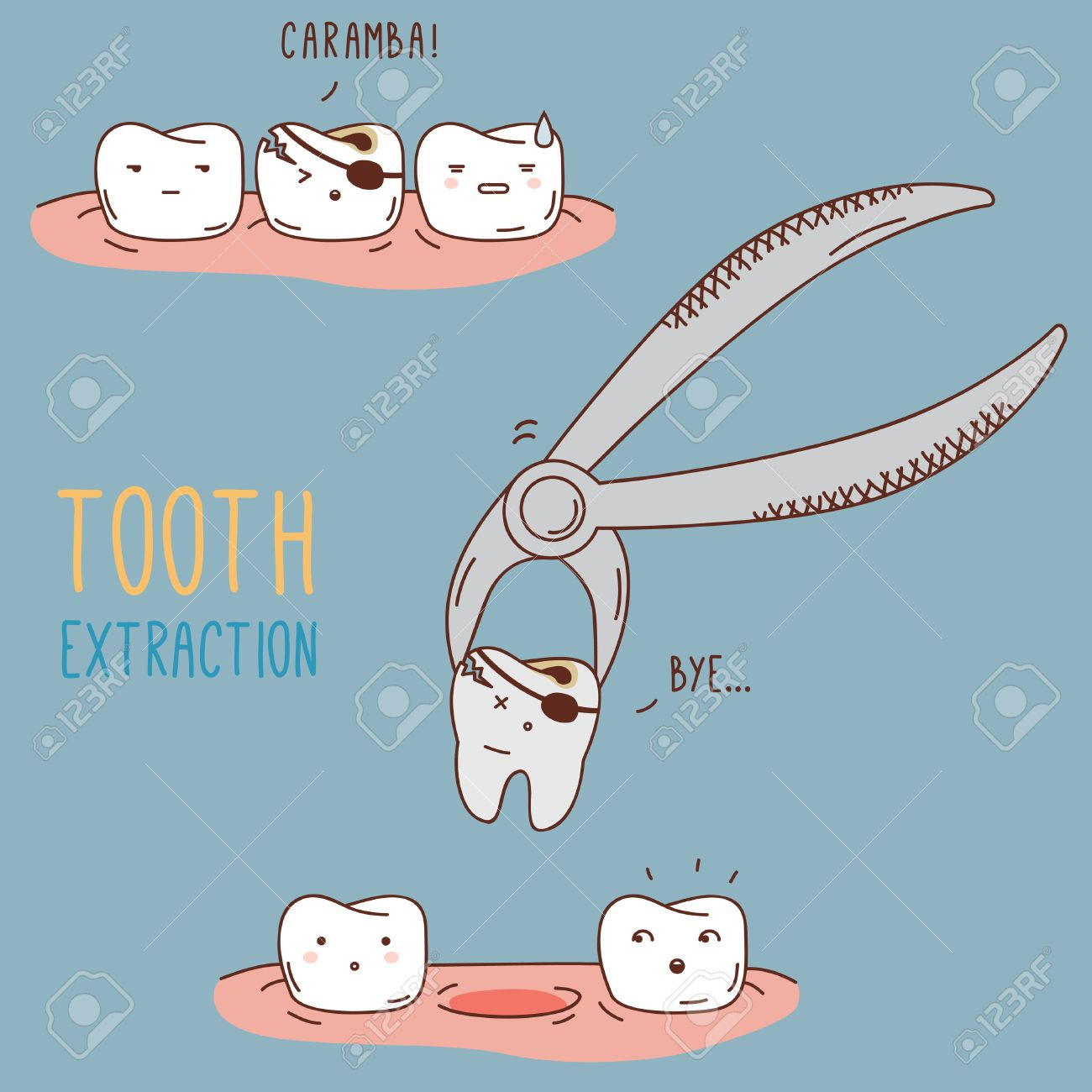 Resultado de imagen de extraccion dental