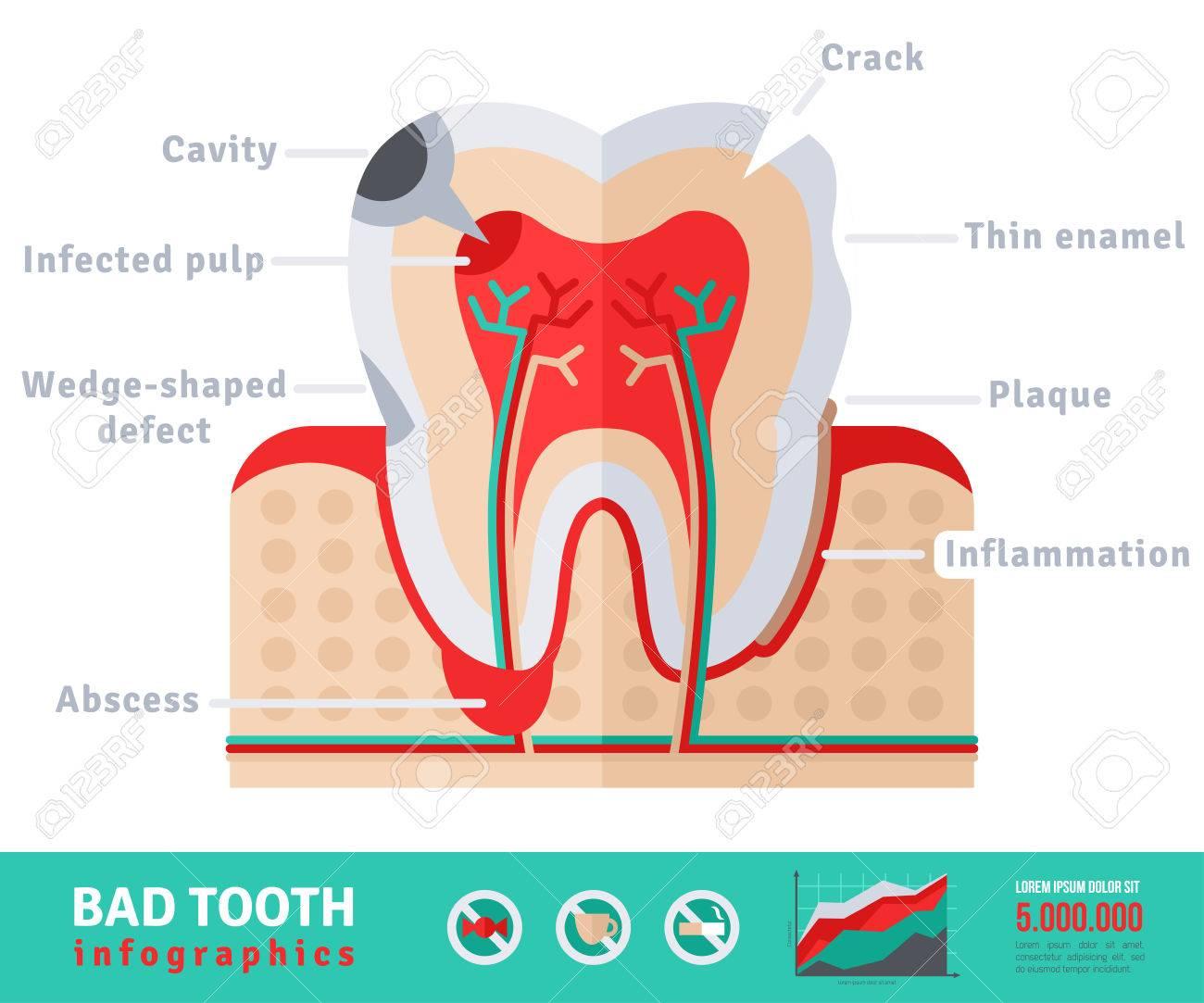 Bad Tooth Anatomy Flat Icon Concept Teeth Infographicsctor