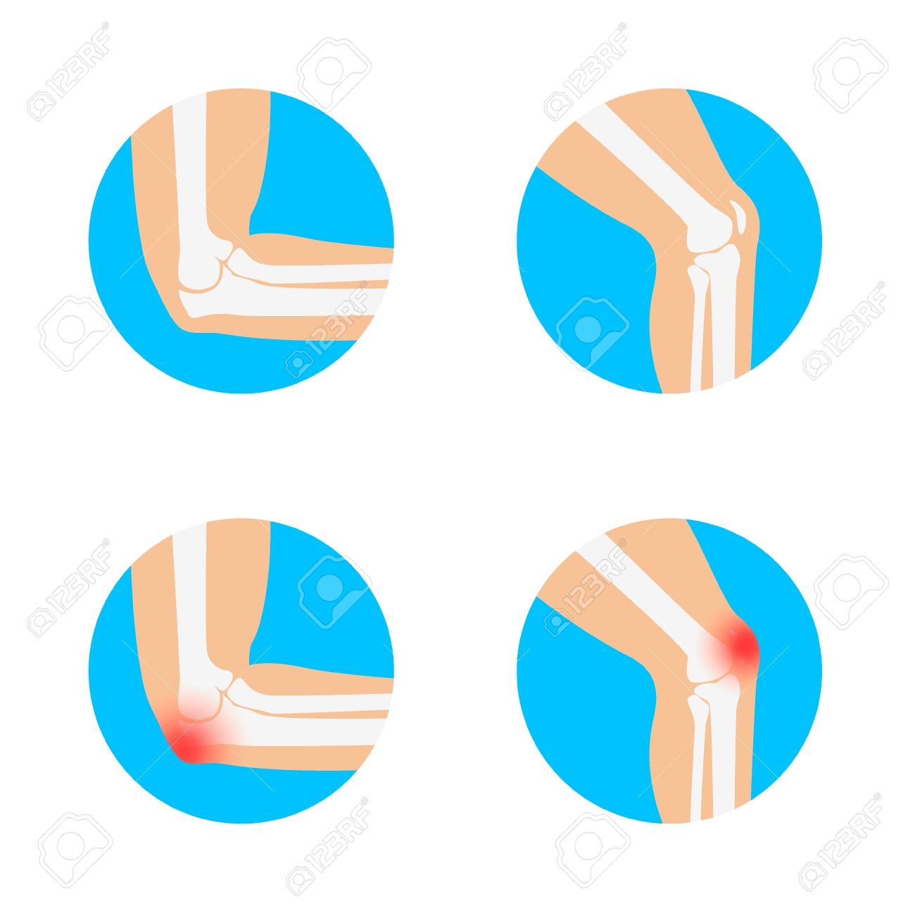 Knee And Elbow Vector Illustration. Elbow Pain. Knee Pain. Anatomy ...