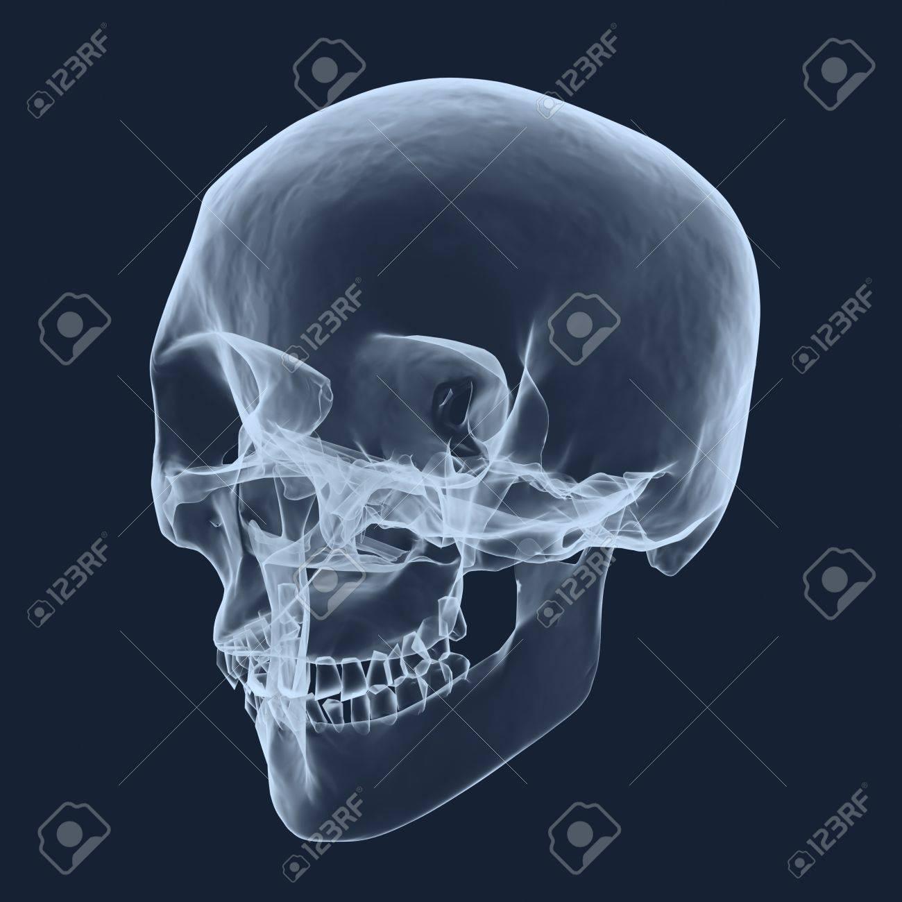 Plantilla de rayos x del cráneo