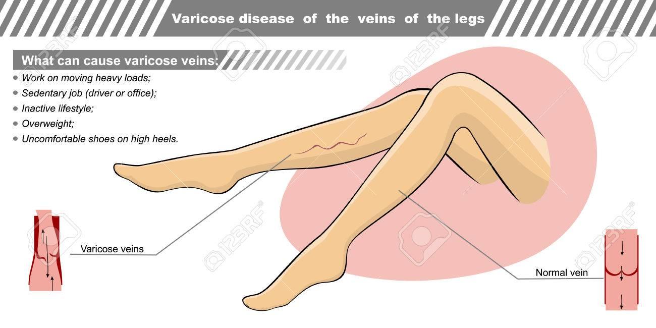 Vector Illustration Of A Varicose Illness Veins The Legs