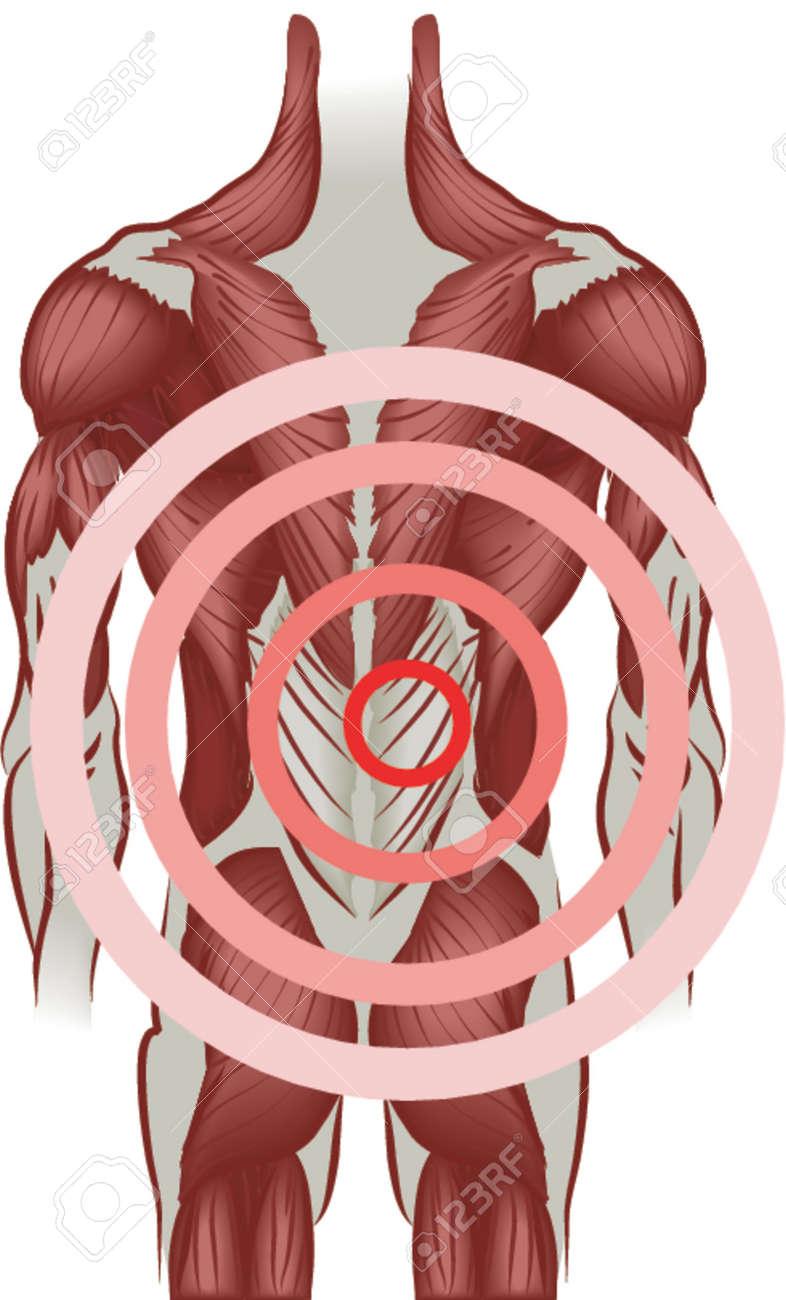 Dolor De Espalda. Los Músculos De La Espalda Que Irradia Dolor. No ...