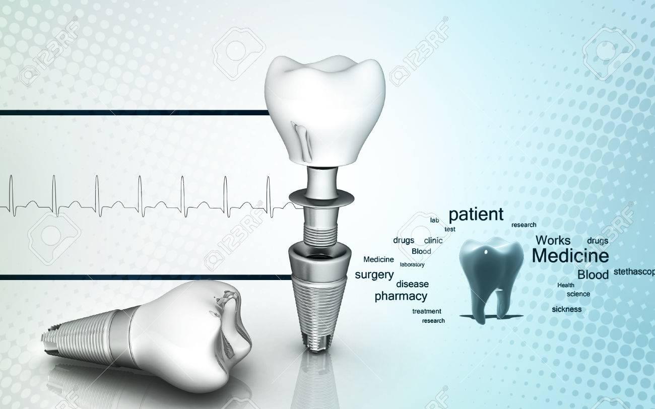 Digital illustration of Dental implant in colour background - 53266143