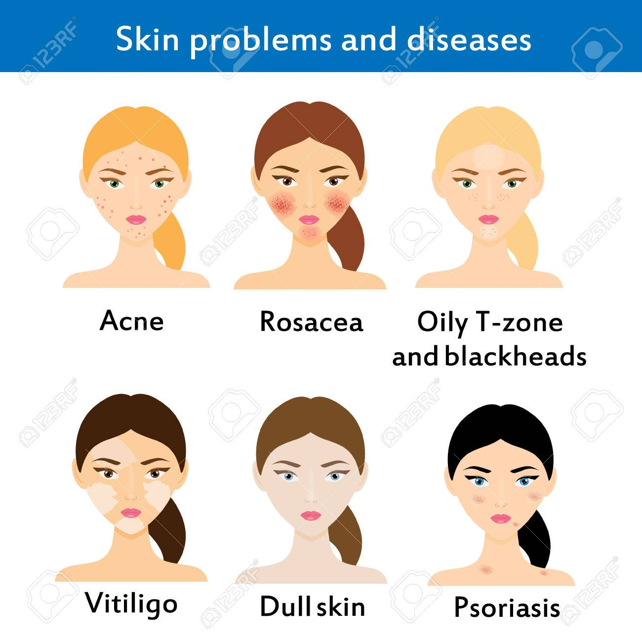 Skin problems and diseases. Acne, rosacea, vititligo and others. Vector illustration - 63020225