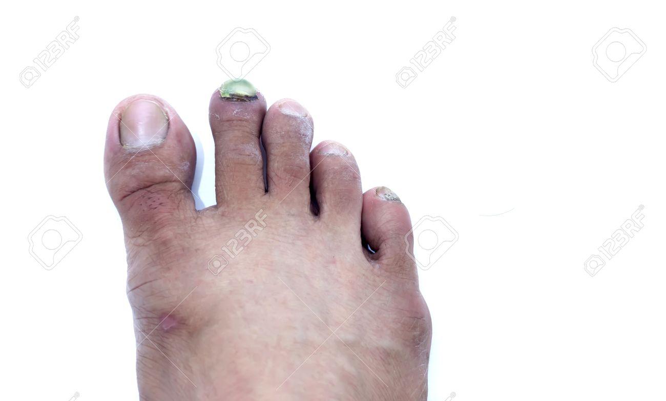 Broken Toe Nail,Onychomycosis, Nail Fungus. Stock Photo, Picture And ...