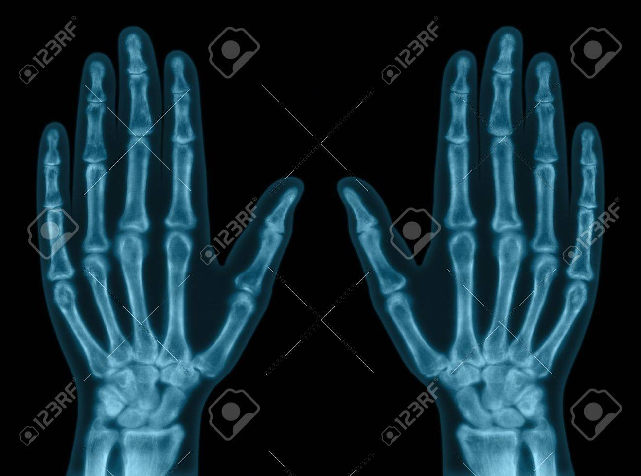 Xray Left Hand X-ray of both hands