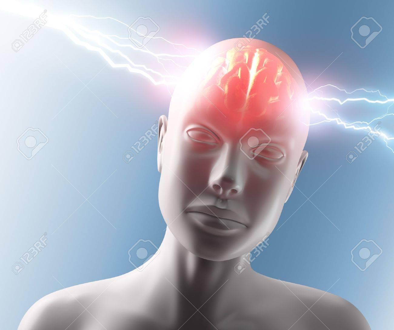 Lightning going through the head and brain. Concept of headache. Stock Photo - 10803479