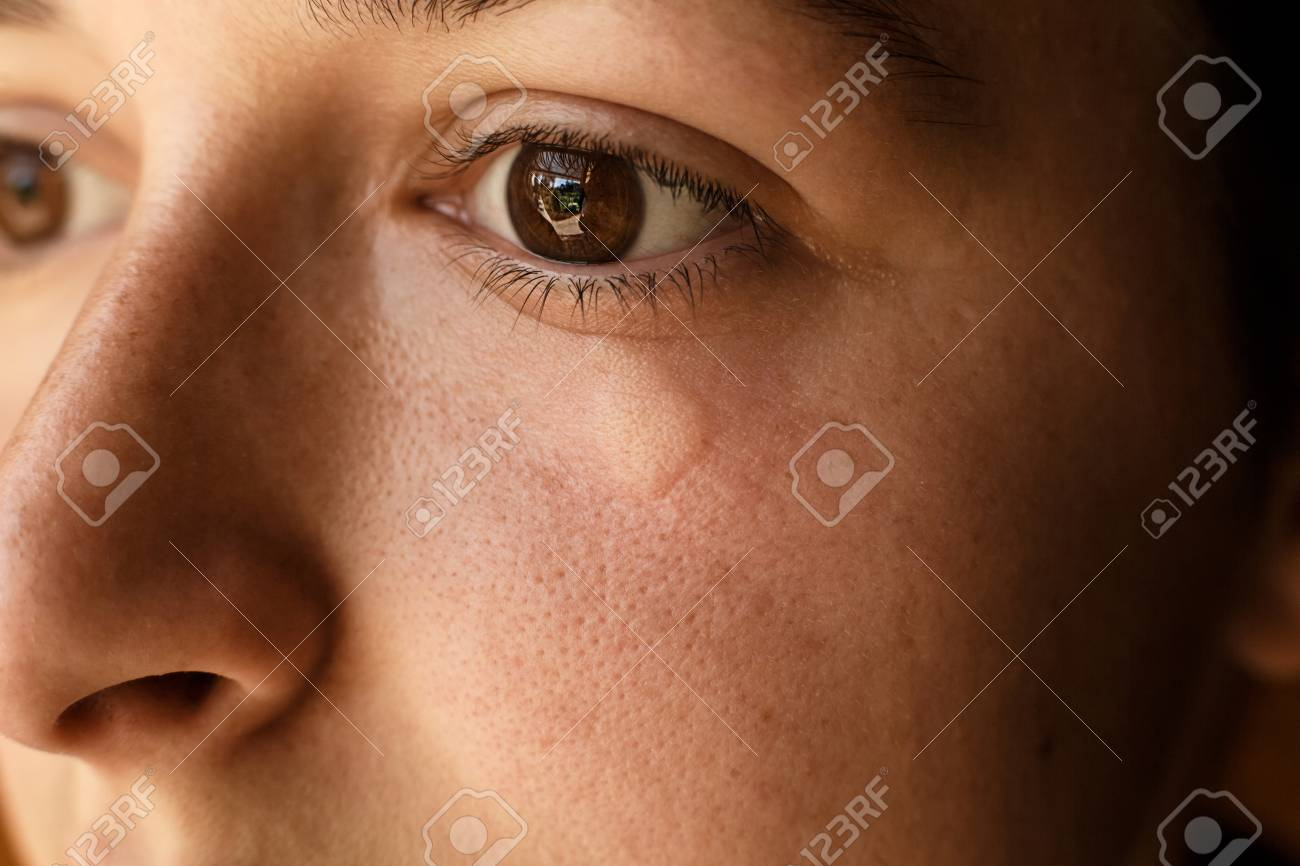portrait of girl wound bee sting on face under eye swelling and