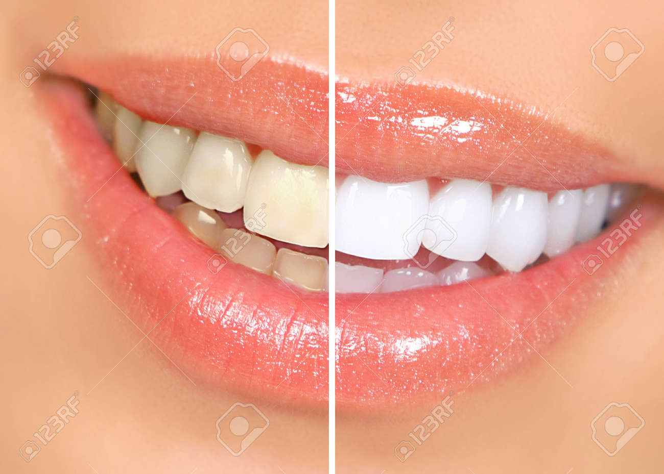 Mouth and teeth before and after whitening - 7251819