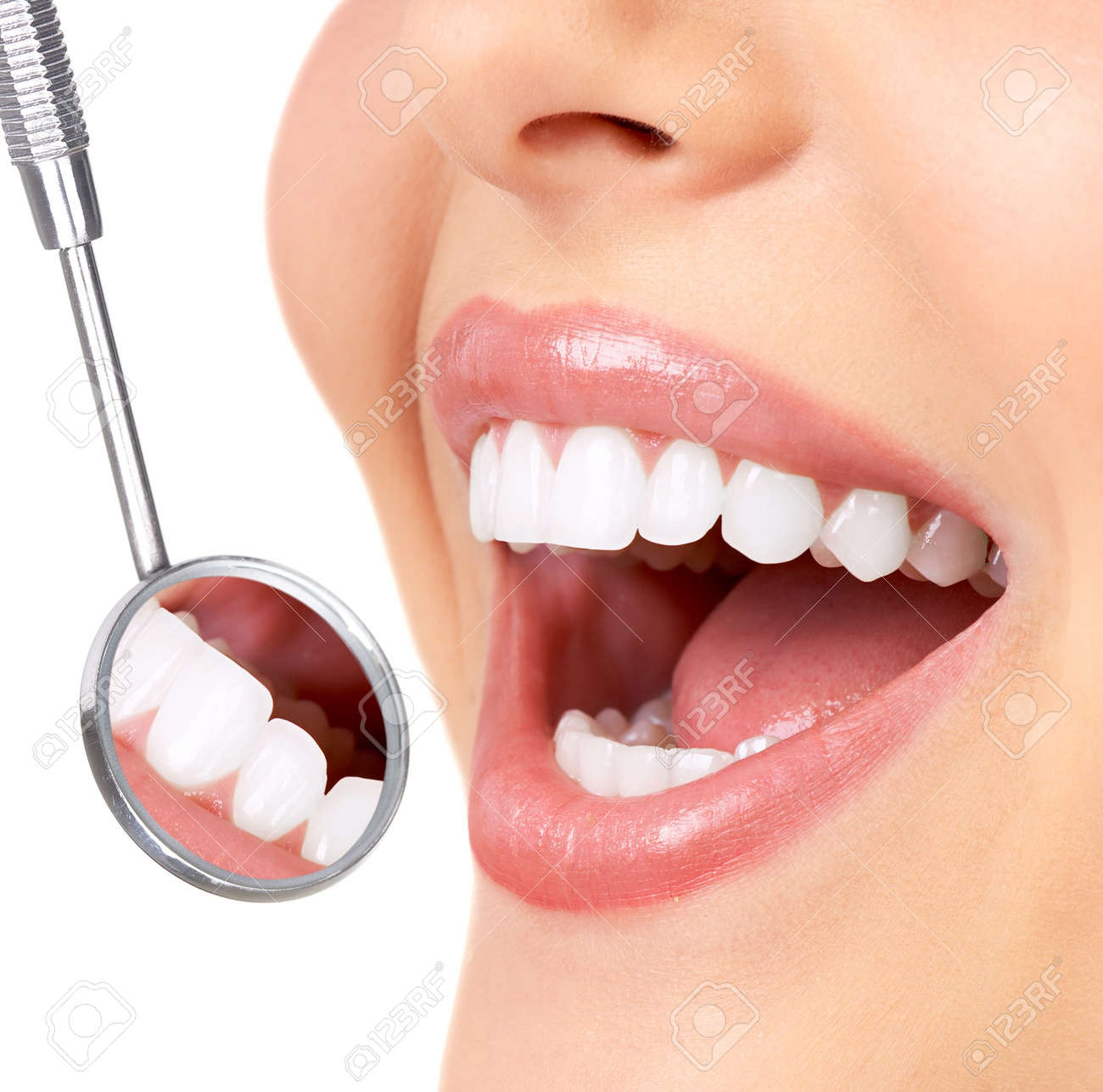 Healthy woman teeth and a dentist mouth mirror Stock Photo - 7566653