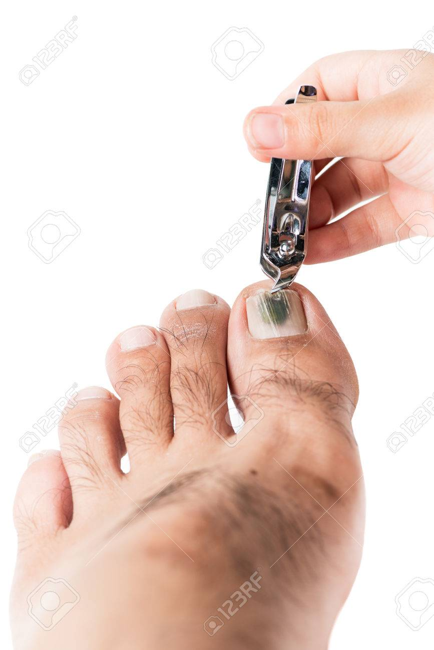 Nail Clippers Cuting Fungi On Toenail Isolated On White Stock Photo ...