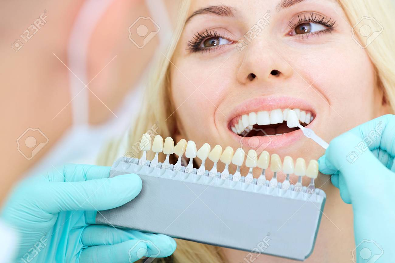 Closeup of a girl with a beautiful smile at the dentist. Dental care concept - 67705314