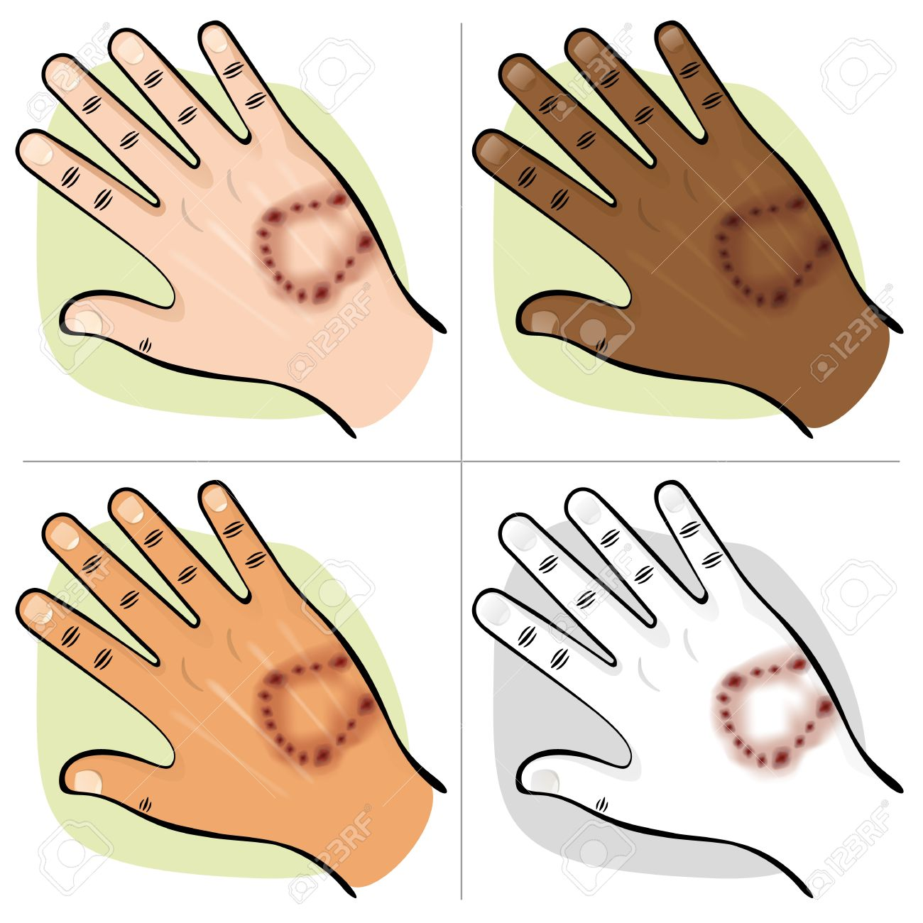 Illustration Is Part Of The Human Body Ethnicities Hand With