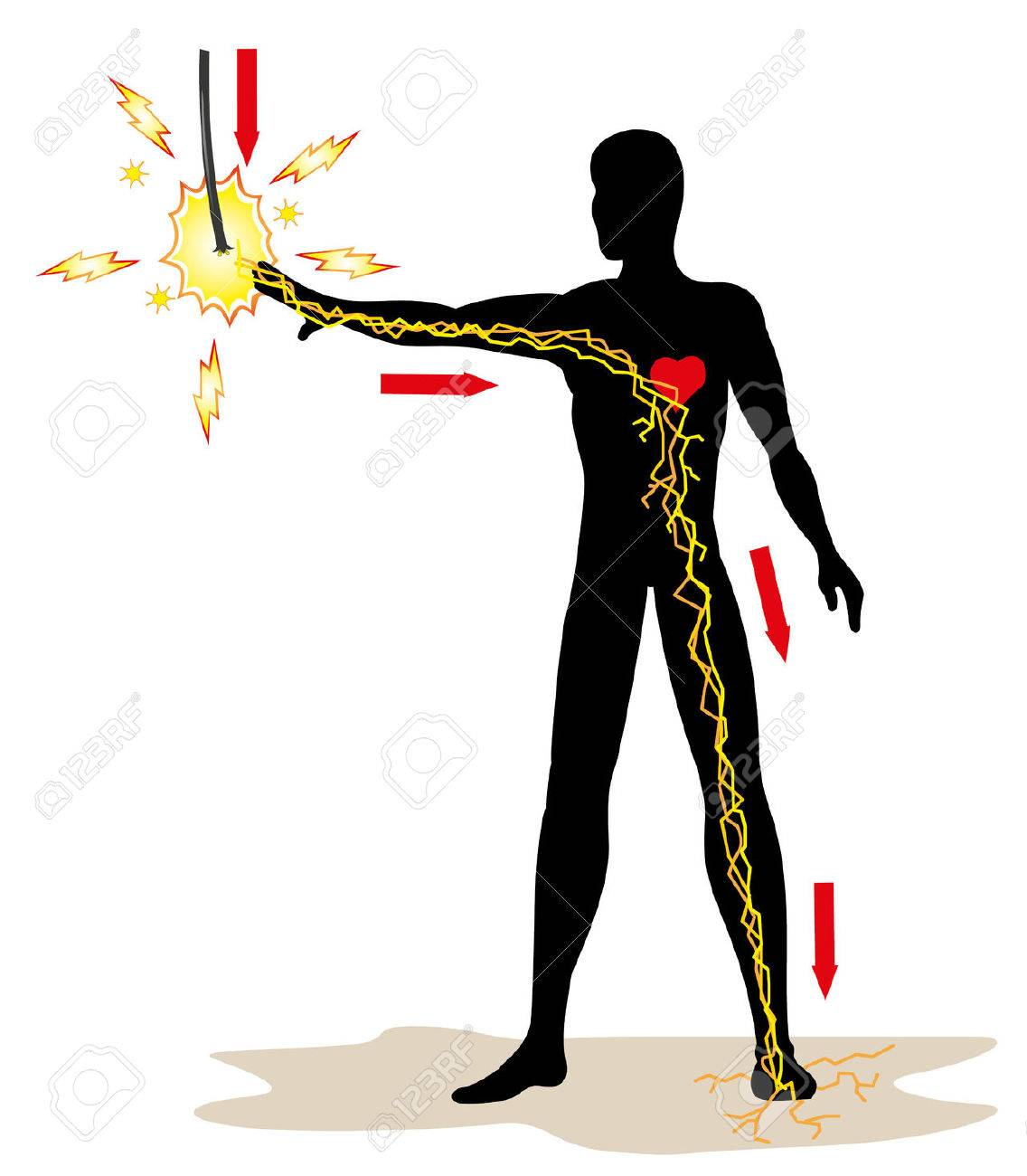 Illustration representing the person receiving an electric discharge in the highvoltage grid due to an accident at work. Ideal for catalogs newsletters and first aid guides - 40380324