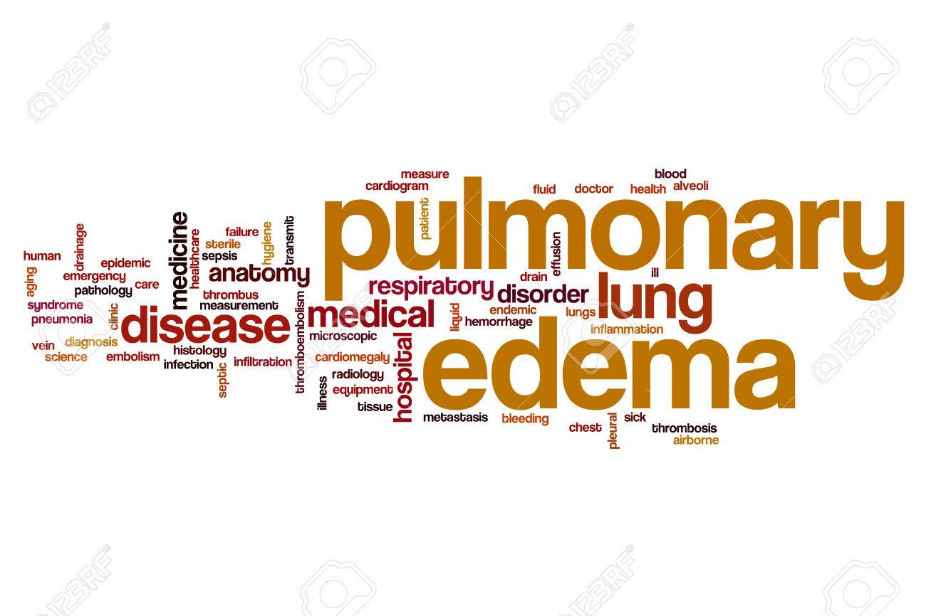 Pulmonary edema word cloud concept