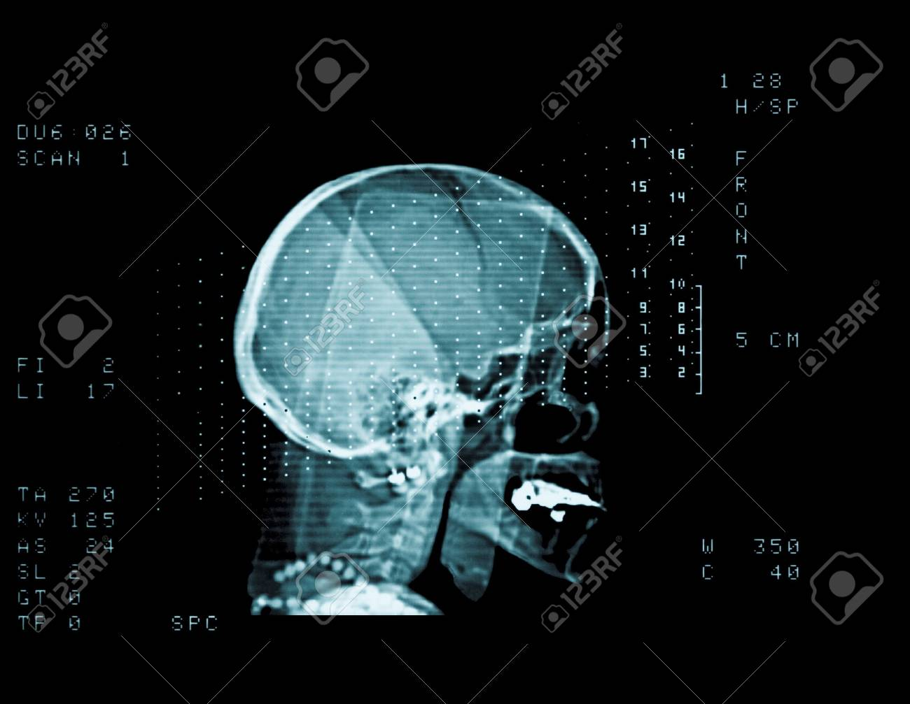 cat scan of a middle aged woman head Stock Photo - 2957480