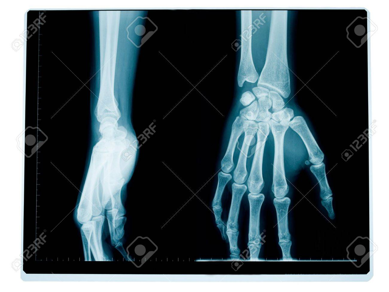 x-ray of the front and side of a hand and wrist of a middle aged woman Stock Photo - 4728834