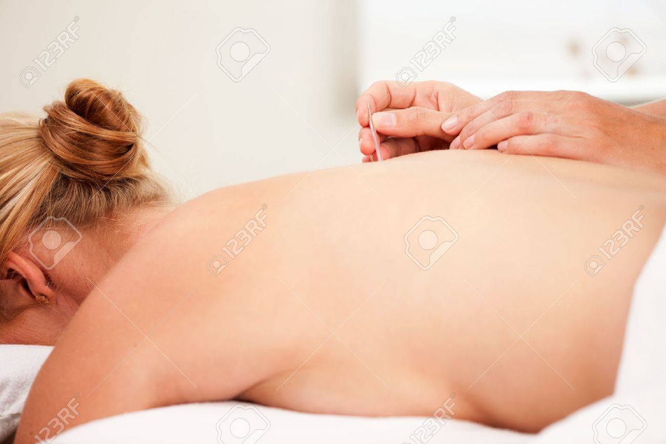 Detail of a hand inserting an acupuncture nedle on the back Shu points Stock Photo - 10762325