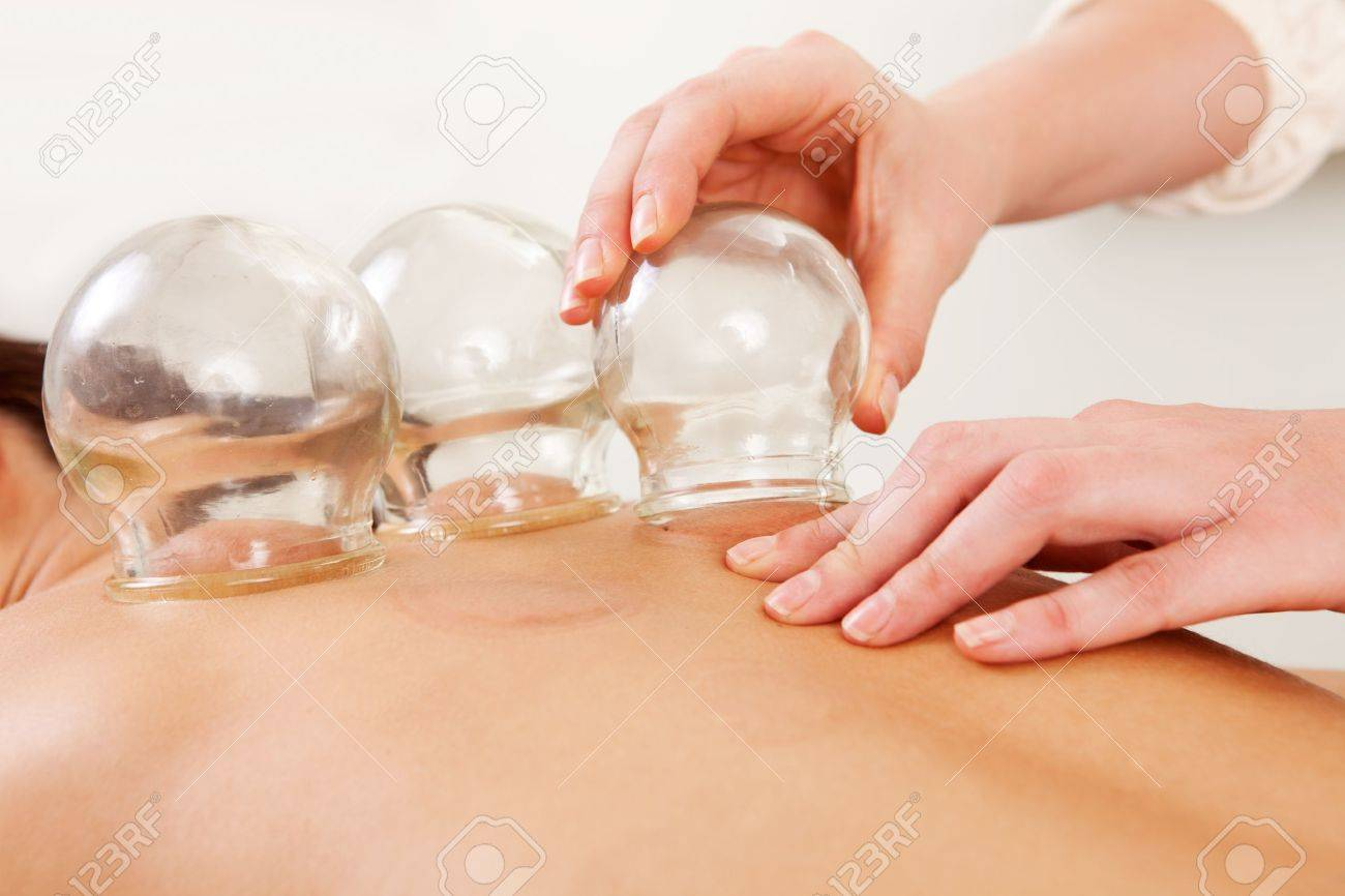 Detail of an acupuncture therapist removing a glass globe in a fire cupping procedure Stock Photo - 11048219